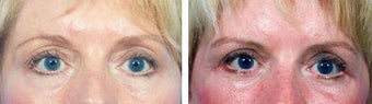 Blepharoplasty before 643188