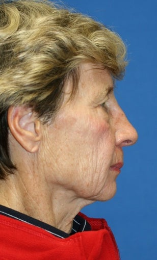short Incision face lift and chemical peel before 223340