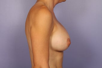 Breast Implants  after 309699