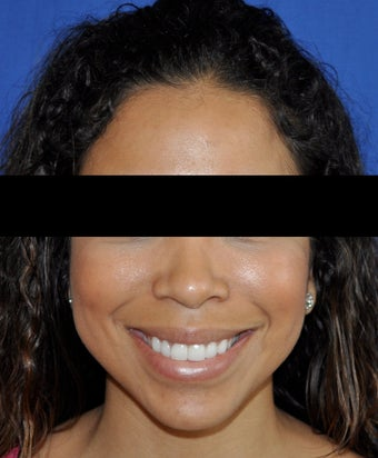 African American Rhinoplasty after 364918