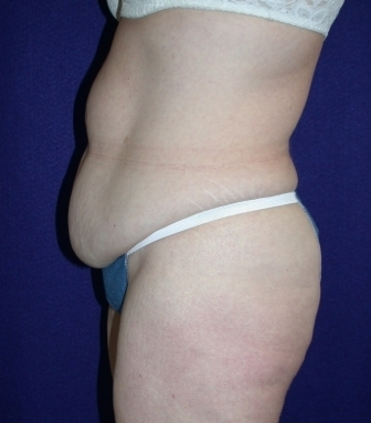 Tummy Tuck (abdominoplasty) 208482