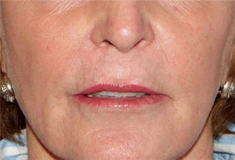 Juvederm for Lip Border and Lip Lines after 123684