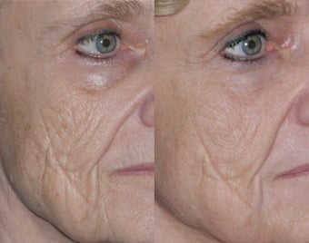 Fraxel repair with C02/Erbium lasers for Upper lip wrinkles before 104309