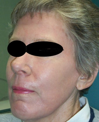 Full face laser resurfacing after 286172