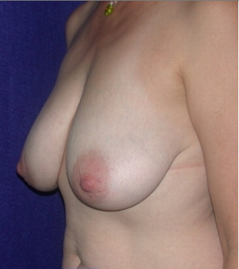 Breast Reduction 213157