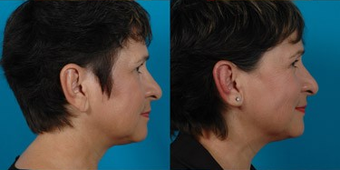 Earlobe Reduction after 574451