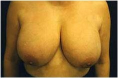 Breast Reduction before 205099