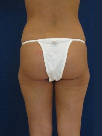 Vaser Hi-Def Liposuction of the back, flanks, medial and lateral thighs before 422739