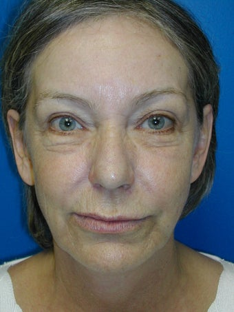 Filler, Botox, and Laser Resurfacing  before 402138