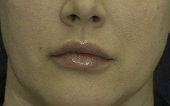 Lip Lift before 606639