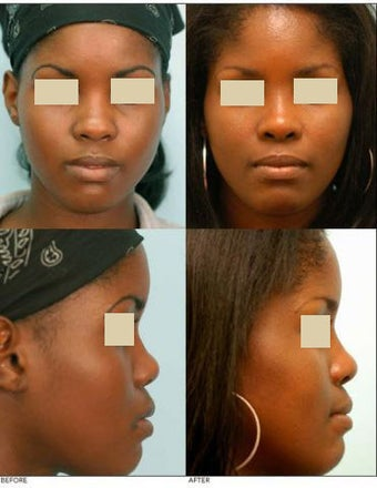 Rhinoplasty (Nose Job) before 136512