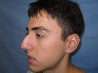 Rhinoplasty before 214624