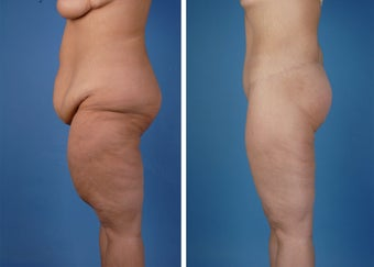 Lower Body Lift and Thighplasty after 335986