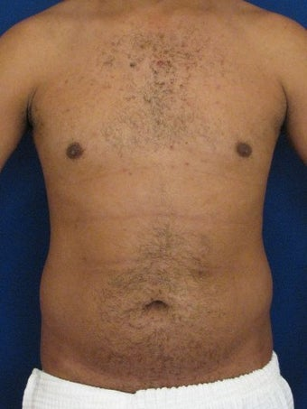 Vaser Hi Def Liposuction of the abdomen, chest, back, and flanks with fat injections to the pectoralis region before 422699