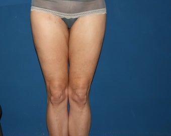 Liposuction of the Hips and Thighs after 644849