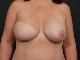 48 Year Old Female for Breast Reconstruction after 643246