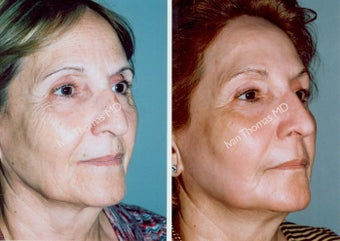 Non-Surgical Face Lift- Exoderm  before 243000