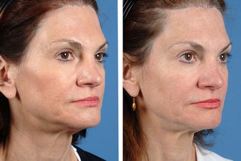 Fillers and Botox Cosmetic 356475