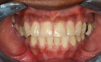 Full mouth reconstruction, smile makeover 458449