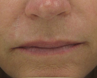 Fraxel re:pair (repair) CO2 laser resurfacing for scar improvement before 44382
