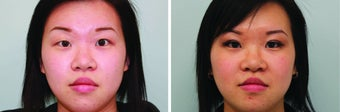 Double Eyelid Surgery Suture before 548933