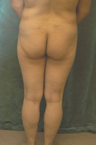 Women's Buttocks Augmentation  518113