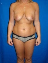 Breast Augmentation Mastopexy and Abdominoplasty before 391288