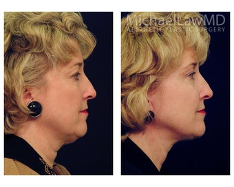 Lower Face and Neck Lift 391669