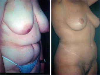 57 year old female, breast reduction before 630908
