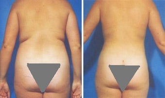 Liposuction before 636103