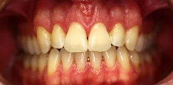 Invisalign after 208629