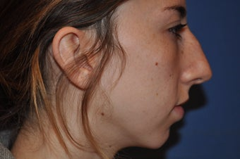 Chin Augmentation with Rhinoplasty before 582528