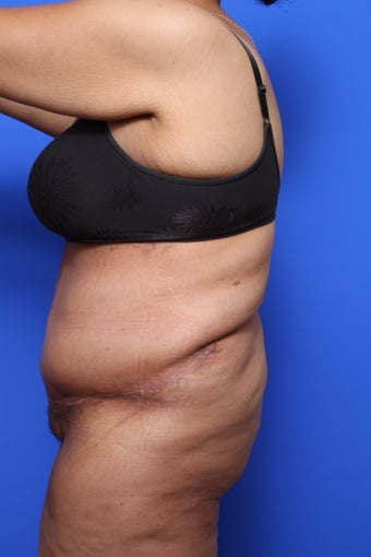 Body Lift with Panniculectomy after 623706