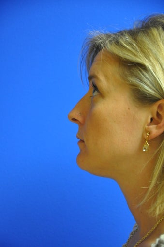 Nasal airway surgery with cosmetic improvment before 478783