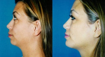 Chin Augmentation before 565891