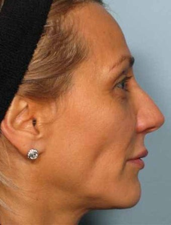 BOTOX combined with Radiesse before 349880