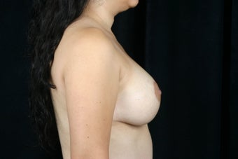 Breast Lift / Breast Augmentation   after 291006
