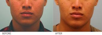 Botox Jaw Reduction before 236013