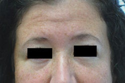 Botox for forehead lines before 93347