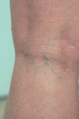 Laser Spider Vein Removal before 106560