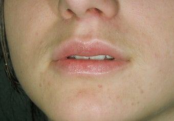 Lip augmentation after 115102