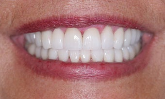 Smile makeover after 372754