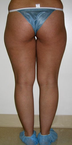 liposuction of thighs for women before 583569