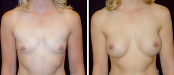 29 year old female, breast augmentation, San Francisco, California before 628398