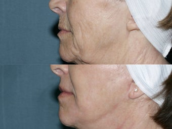 Face and Neck Fraxel repair with C02/Erbium lasers for upper lip wrinkles before 104645