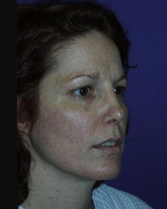 Mini Facelift, Eyelids, Cheek Lift and Lip Enhancement before 134429