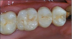 Dental Implants For Missing Back Teeth after 504350