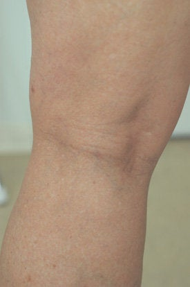 Laser Spider Vein Removal after 106560