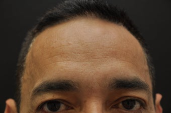 Botox to forehead and glabella after 187259