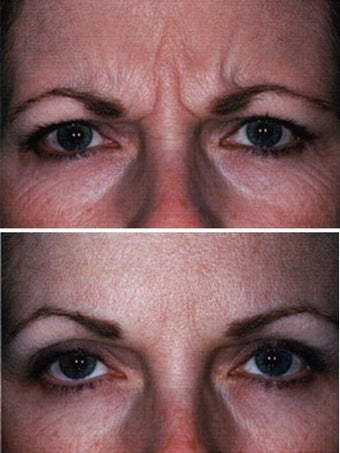 Botox Forehead Before and After before 6332